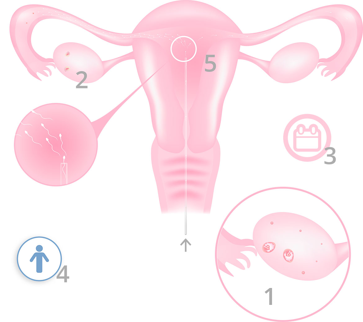 Artificial Insemination by husband (AIH) - Infographic
